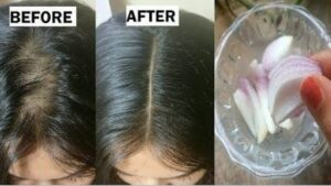 http://mjeetkaur.com/how-to-reduce-hair-loss-in-1-minute-with-onion-juice/