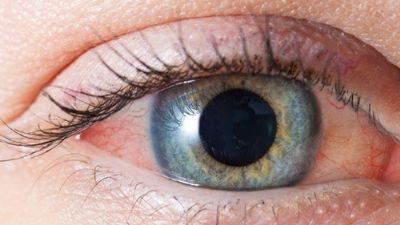 http://mjeetkaur.com/why-cataracts-in-the-eye-and-how-to-cure/