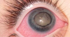 Why Cataracts in the Eye and How to Cure